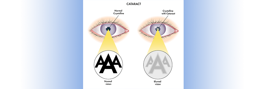 cataracts chart